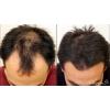 Ниоксин (Nioxin) в Омске, уход и лечение волос